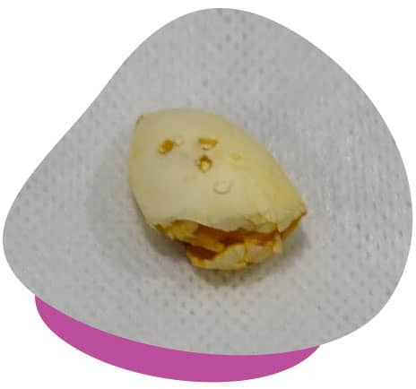 egg post surgery